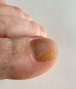 Massapequa Podiatrist | Massapequa Infections | NY | David G Robbins, DPM |